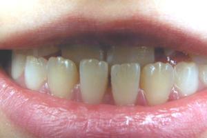 Dr Kim Henry orthodontics